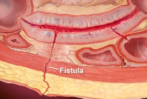 fistula thin